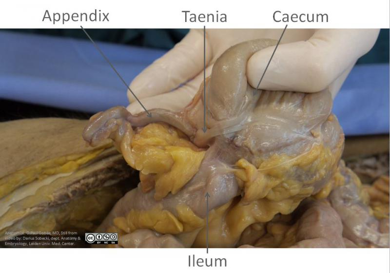 Characteristics of the large intestine | AnatomyTOOL