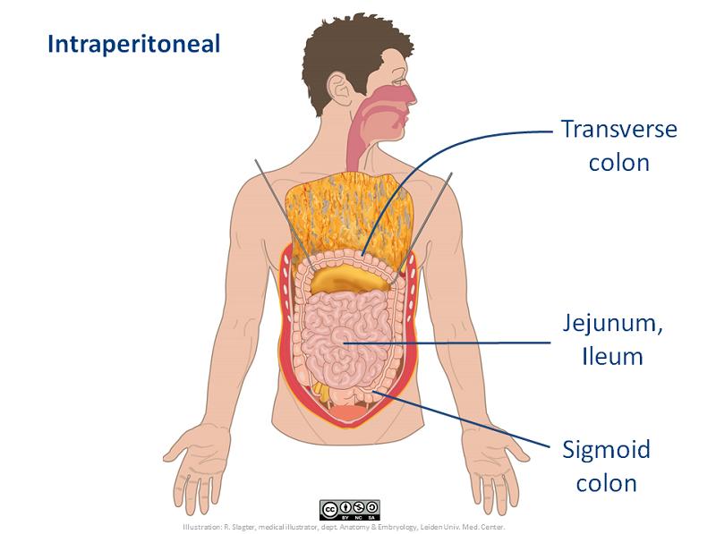 Intraperitoneal Anatomytool